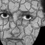 Czas na psychodermatologię
